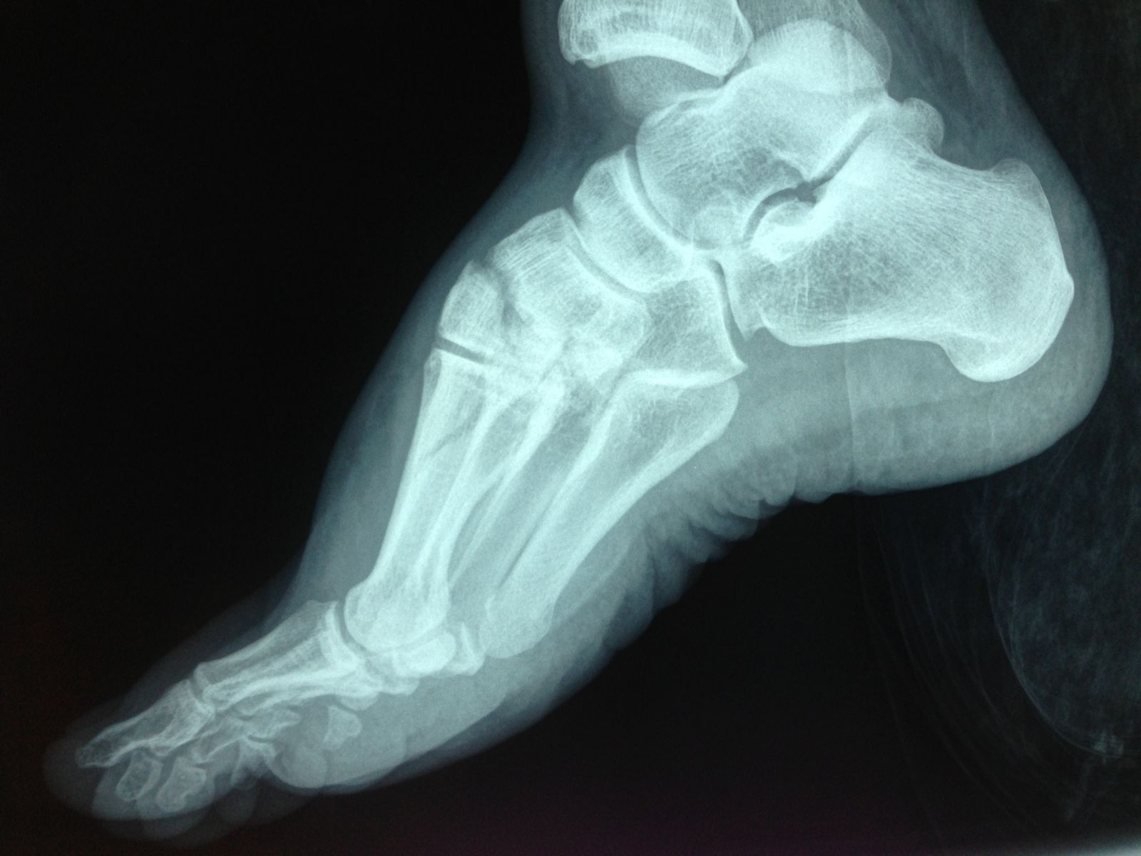 Broken Bone Top Of Foot 48