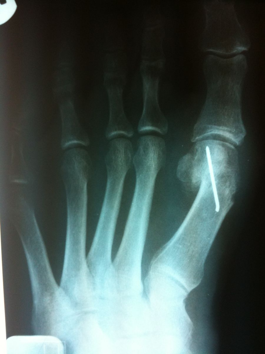 Bunion Pictures - Weston, FL Foot Doctor